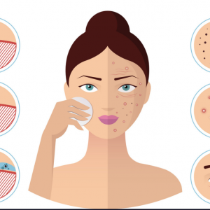 Introduction class of Understanding & Treating Acne 10:00 – 3:00