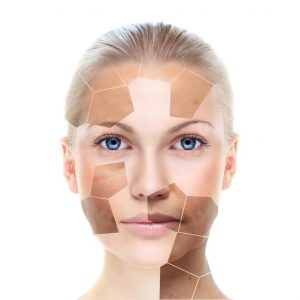 Pigmentation and Melasma Consultation